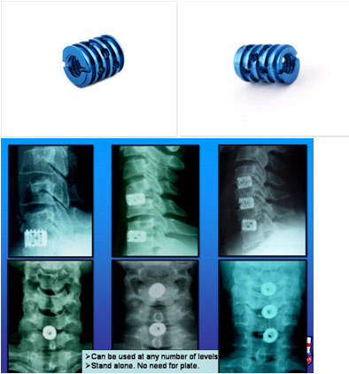 Dr  P  S  Ramani, The Emergence of Spinal Surgery, Micro
